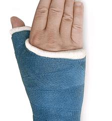 Plaster, Casting & Braces Services